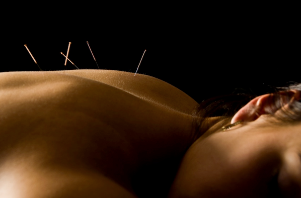 Board Certified Naples Acupuncturist